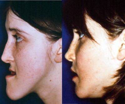 Good Cosmetic Surgery